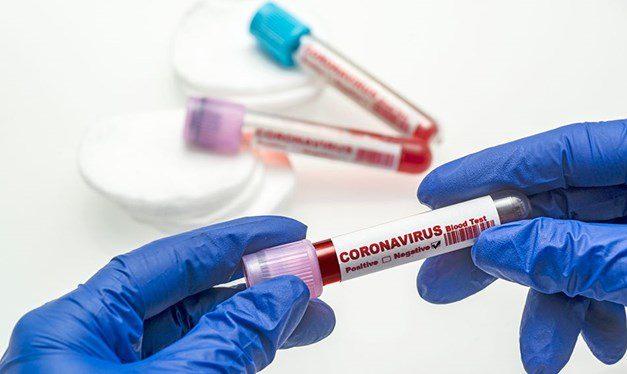 27 Ekim 2020 corona virüs tablosu: 76 can kaybı, 2 bin 209 yeni hasta
