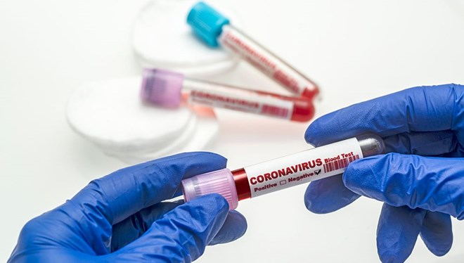 10 Kasım 2020 corona virüs tablosu: 87 can kaybı,2 bin 529 yeni hasta