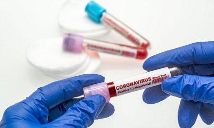 19 Nisan 2021 corona virüs tablosu: 341 can kaybı, 55 bin 149 yeni vaka